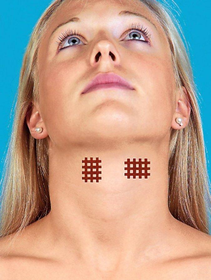 Servoprax Akupunktioteippi Punainen
